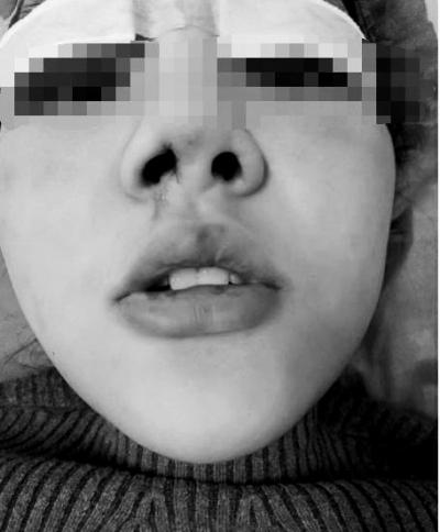 河南大三女生贷款去整容,术后出现感染且俩鼻孔一大一小