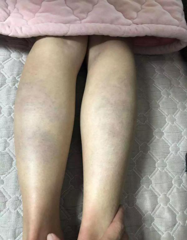 安徽多名学生因成绩未达标遭笤帚木把殴打,涉事老师被辞退