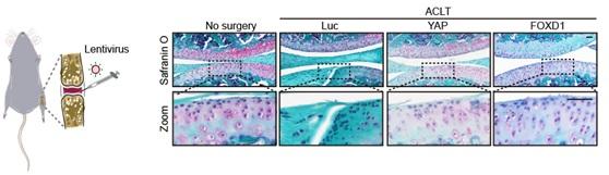 """中国学者一周内两度发文:找到更多人干细胞""""年轻因子"""""""