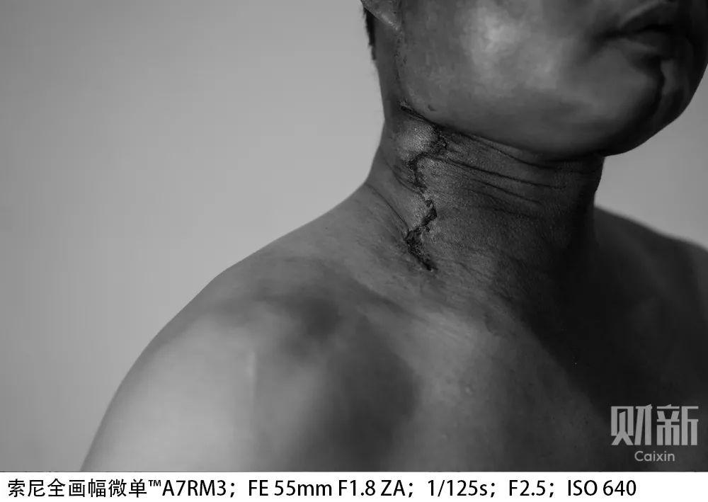 患口腔癌的湖南人刘伟在经历手术后,脖颈处留下一处骇人的创口。医生说他的口腔癌和长期嚼食槟榔有关。