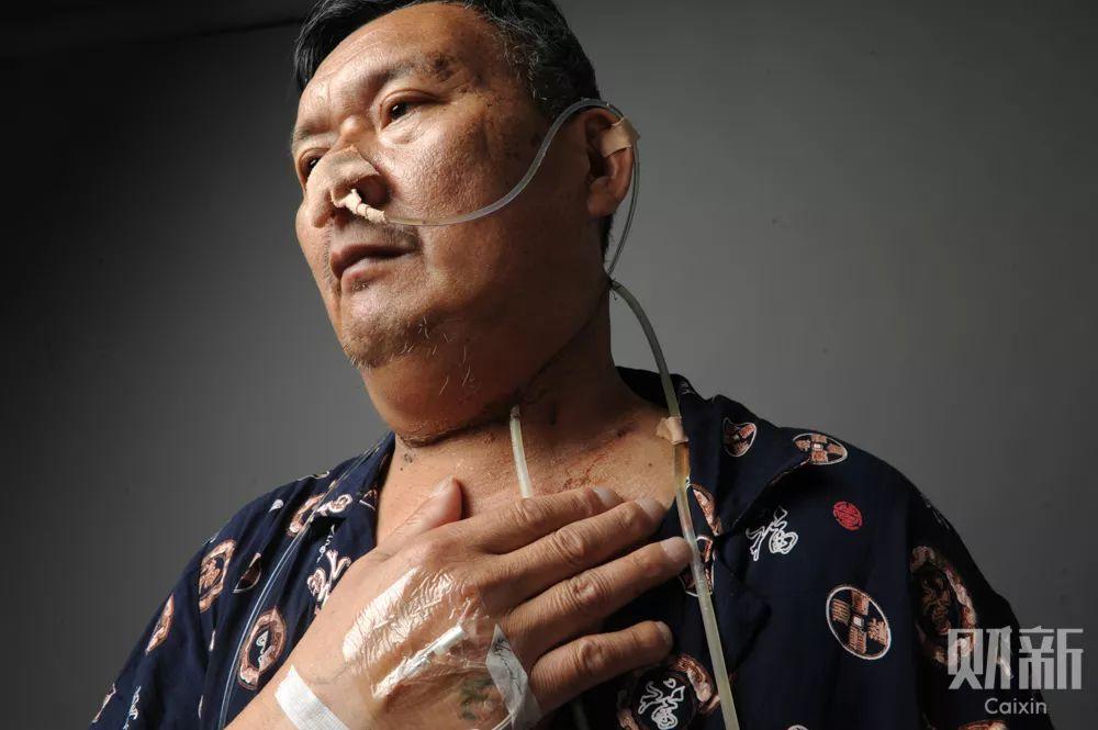 李水生出院前夕,医院正在给他拍摄医学影像建立档案,此后他需要定期来医院复查。