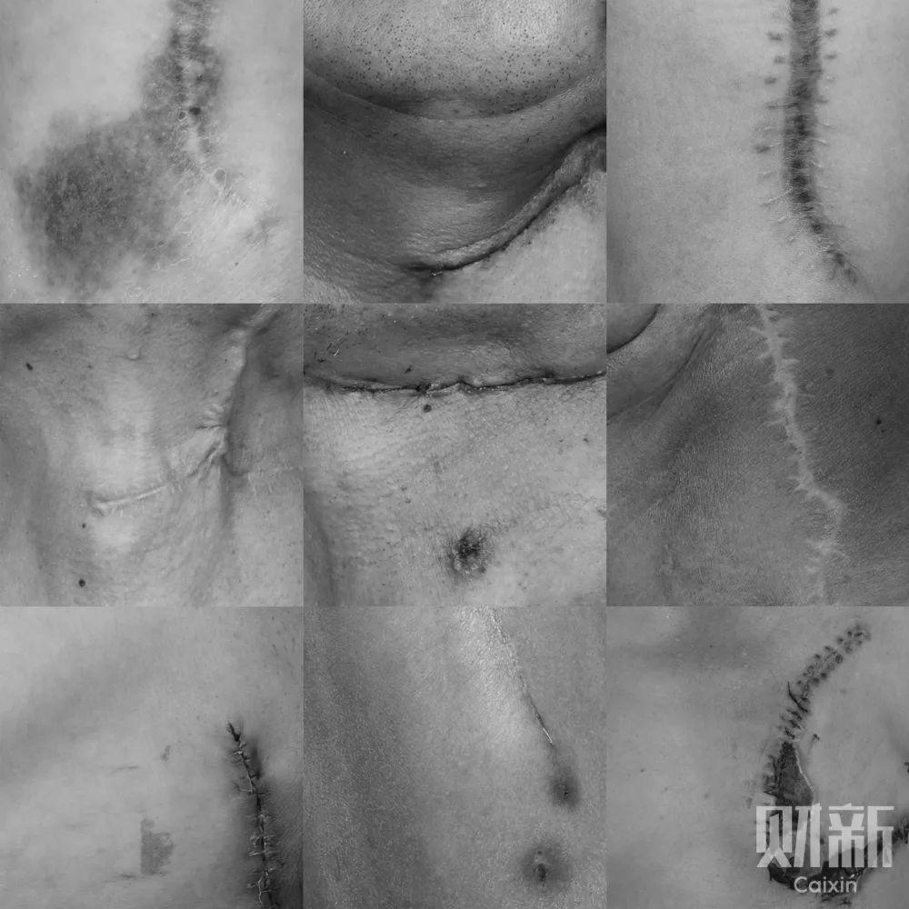 口腔癌患者经历手术后留下的疤痕。