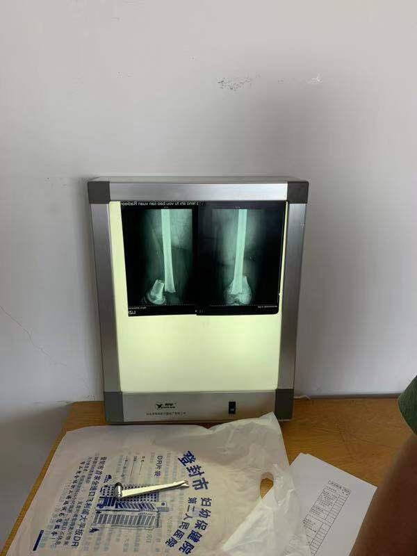 河南一武校学生遭教练殴打,警方:已立案,正做伤情鉴定