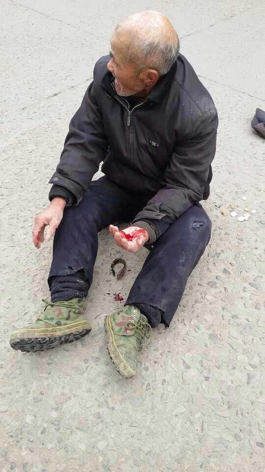武汉78岁老人卖菜被城管收秤,扒车夺秤遭拖行住进ICU