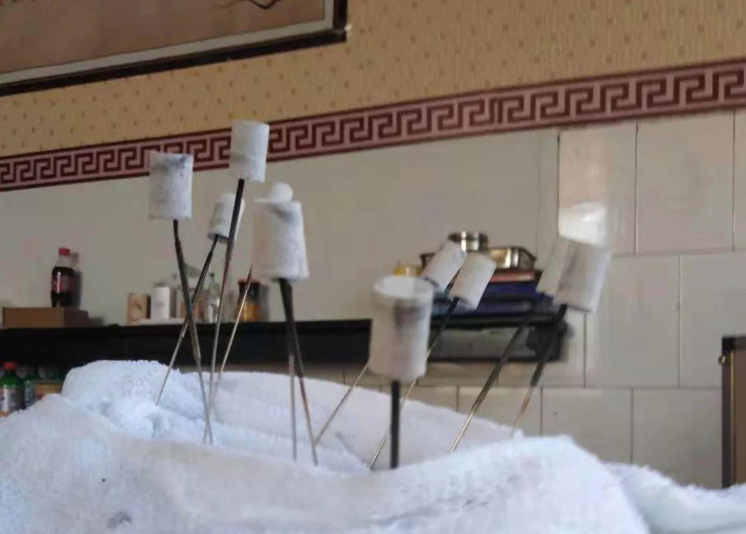 患者提供的針灸圖片,上面都裹著艾灸條