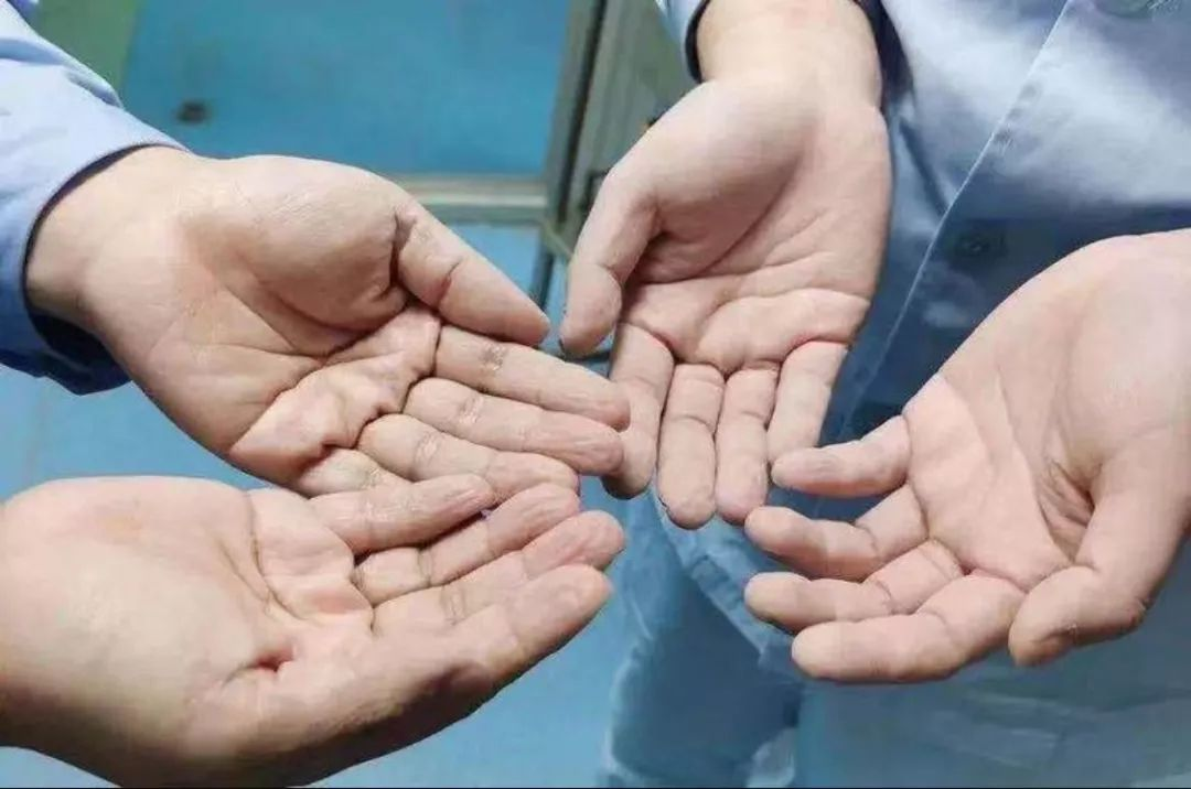 这是武汉前线护士的手,戴了8小时防护手套的手。
