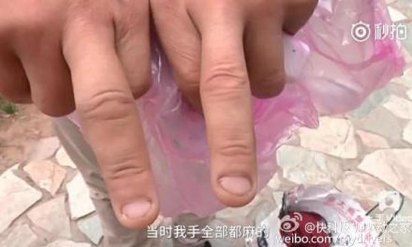 iPhone7被曝国内首炸:电池没烧苹果中国称已报总部
