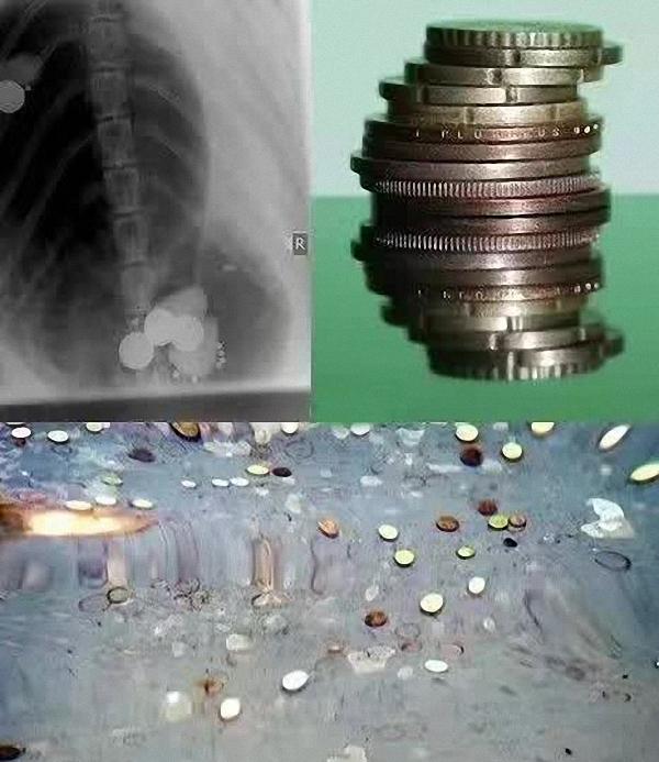 你祈福它丧命!泰国25岁海龟误吞千枚硬币,手术后仍身亡 - 梅思特 - 你拥有很多,而我,只有你。。。